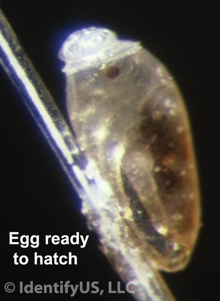 Head louse - ready to hatch egg