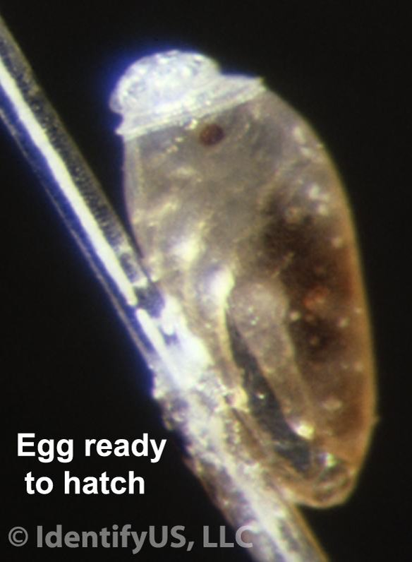 head louse egg ready to hatch