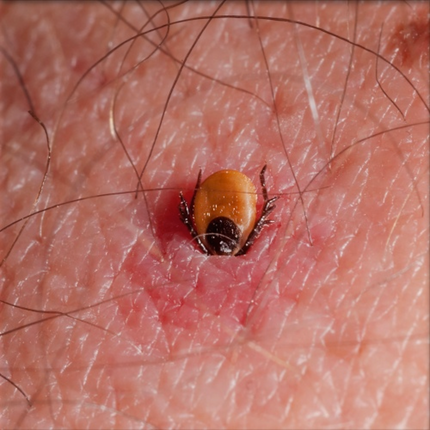 Tick Borne Disease Pathogens